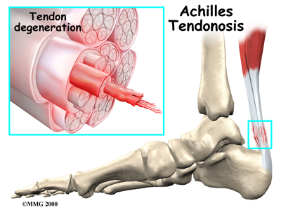 orthotics for achilles tendonitis. Achilles tendonitis, also